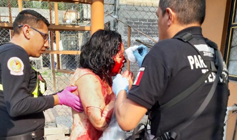 Investigan ataque de perros a dos mujeres en Texcoco